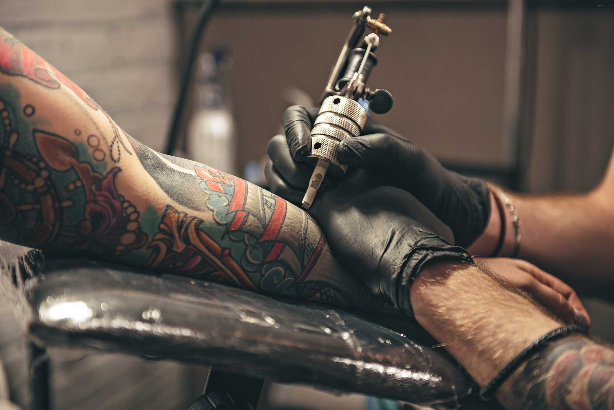 Tattoo Removal Reviews And Cheap Tattoo Supplies