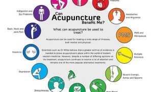 What Is Acupuncture Good For?